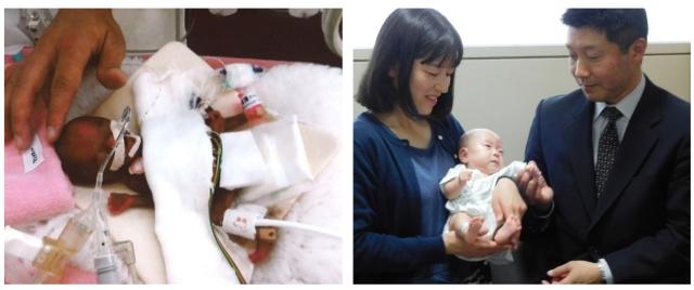 나가노(長野)현립아동병원에서 지난해 10월 태어난 258g 세계서 가장 작은 아기 (좌), 3.37kg으로 지난 4월 20일 건강하게 퇴원했다 (우)