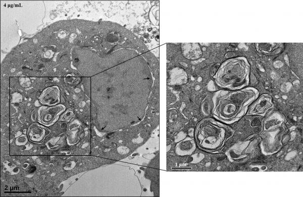 사람의 기관지 상피세포에서 발견된 라멜라 구조