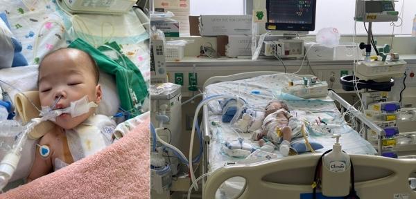 밀알복지재단 선천성 심장병으로 중환자실에서 치료중인 김의론(1) 아동