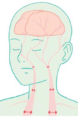 머리로 혈액을 보내주는 원동맥